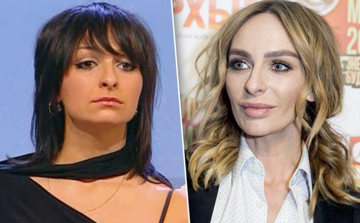 Екатерина Варнава до и после филлеров