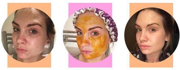 маска из куркумы для лица какой результат