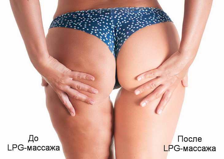 lpg массаж эффект