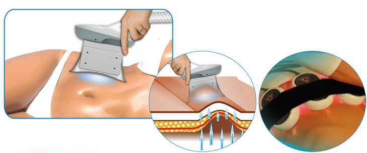 Лазерный вакуумный массаж